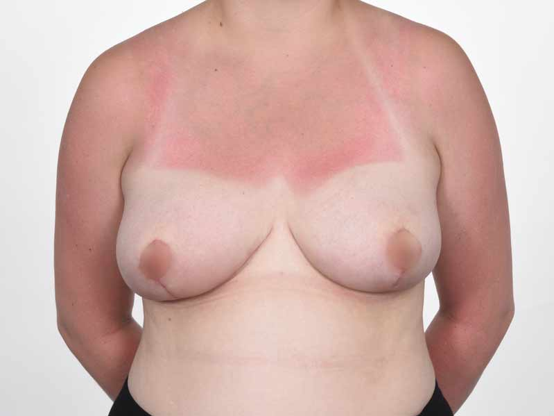 Before and after photos of patient who underwent breast reduction