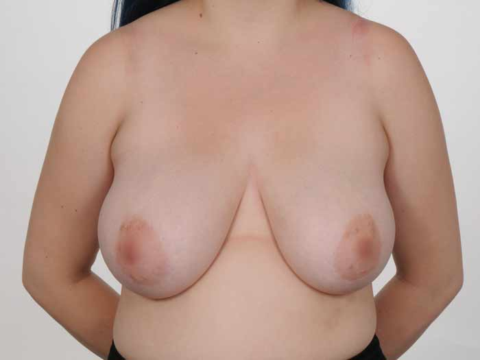 Before and after photos of breast reduction patient