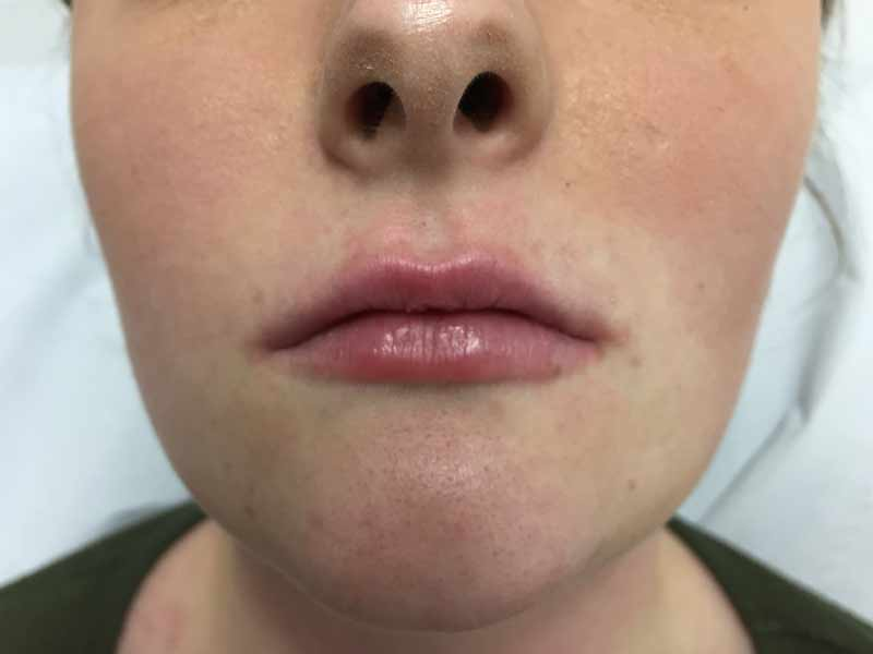 Before and after photo of lip filler treatment