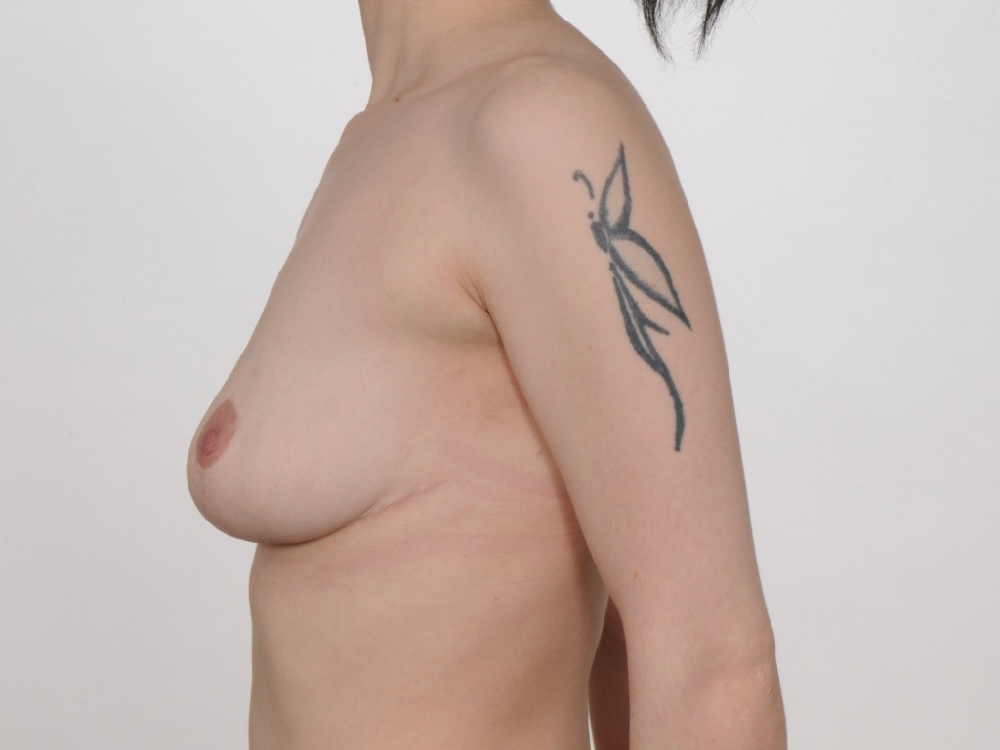 postop breast asymmetry correction