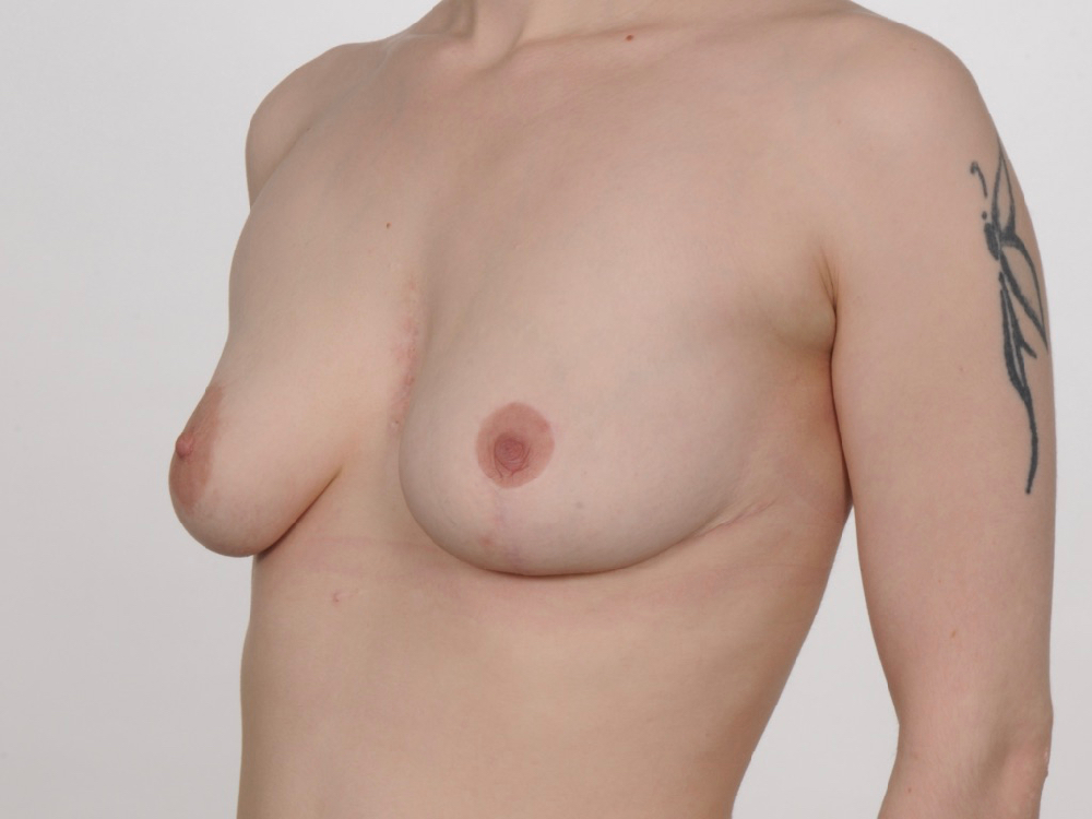 post breast asymmetry correction