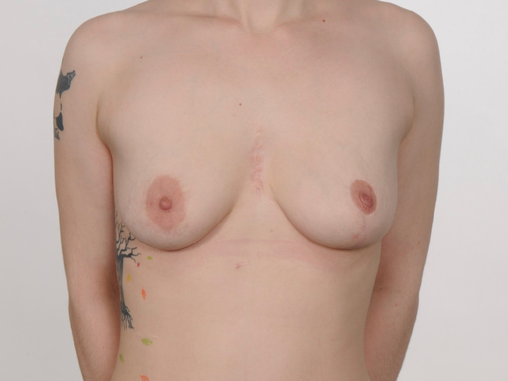 left breast reduction for asymmetry