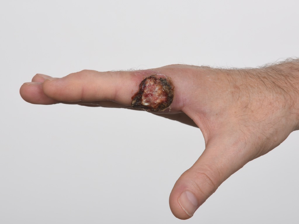before photo of skin cancer to index finger