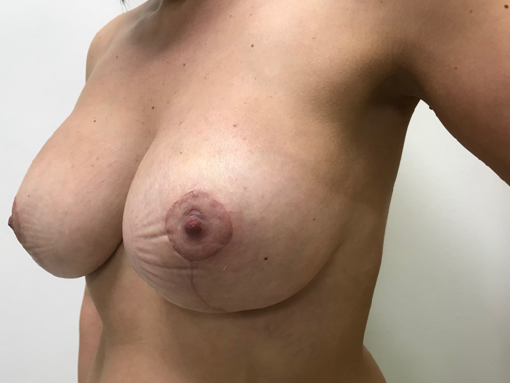post augmentation mastopexy (boob job uplift)