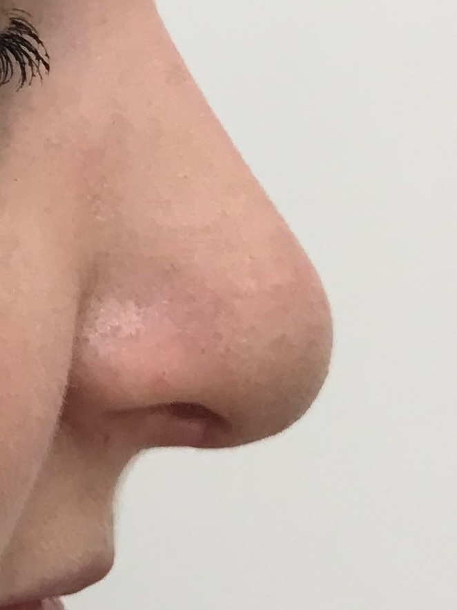 post rhinoplasty