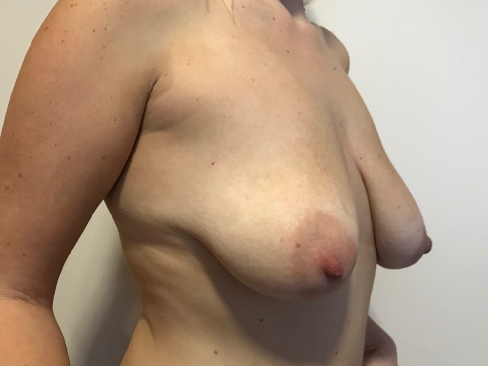 Preop augmentation mastopexy