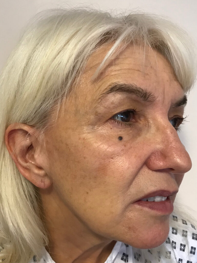 Preop facelift and fat grafting photo