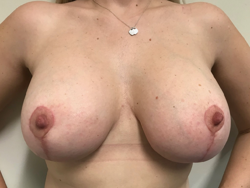 post op breast augmentation mastopexy