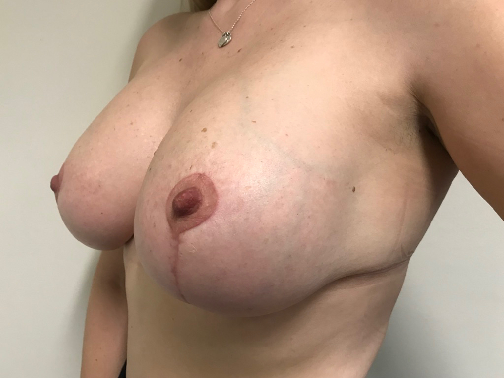 post op photo augmentation mastopexy