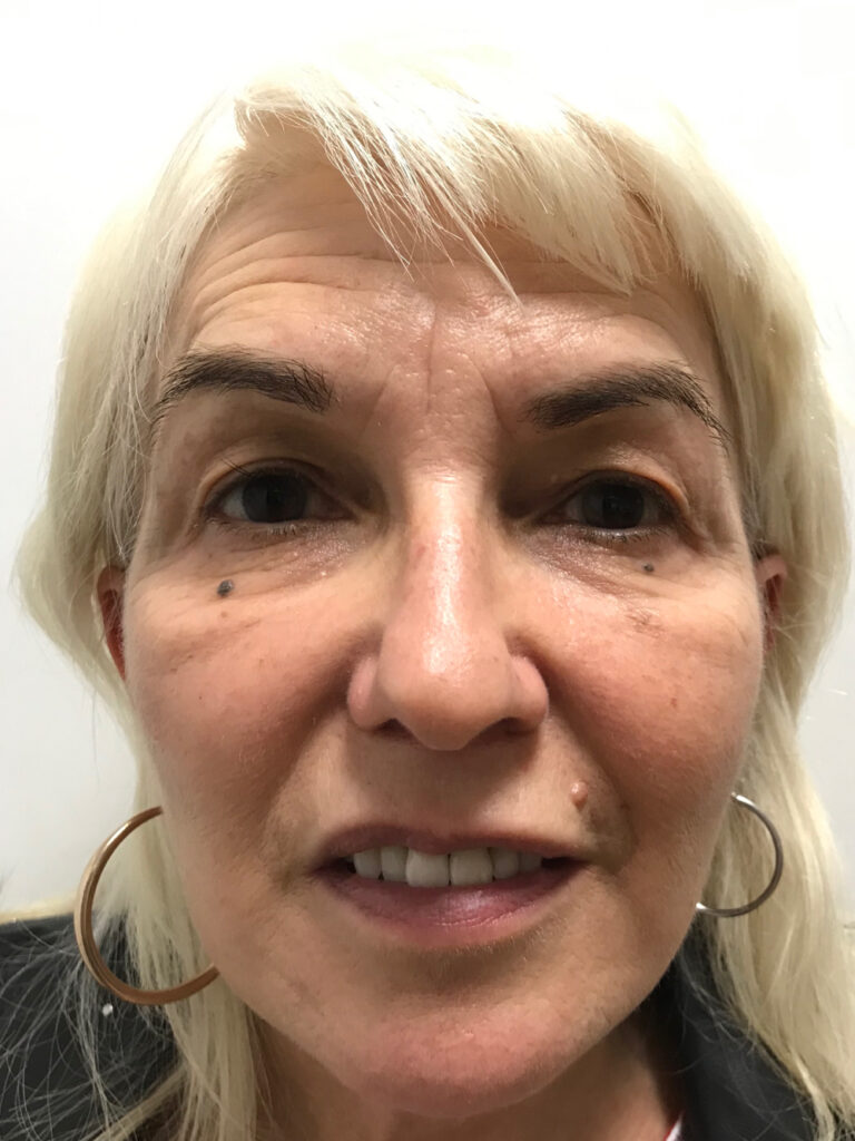 postop facelift and fat grafting