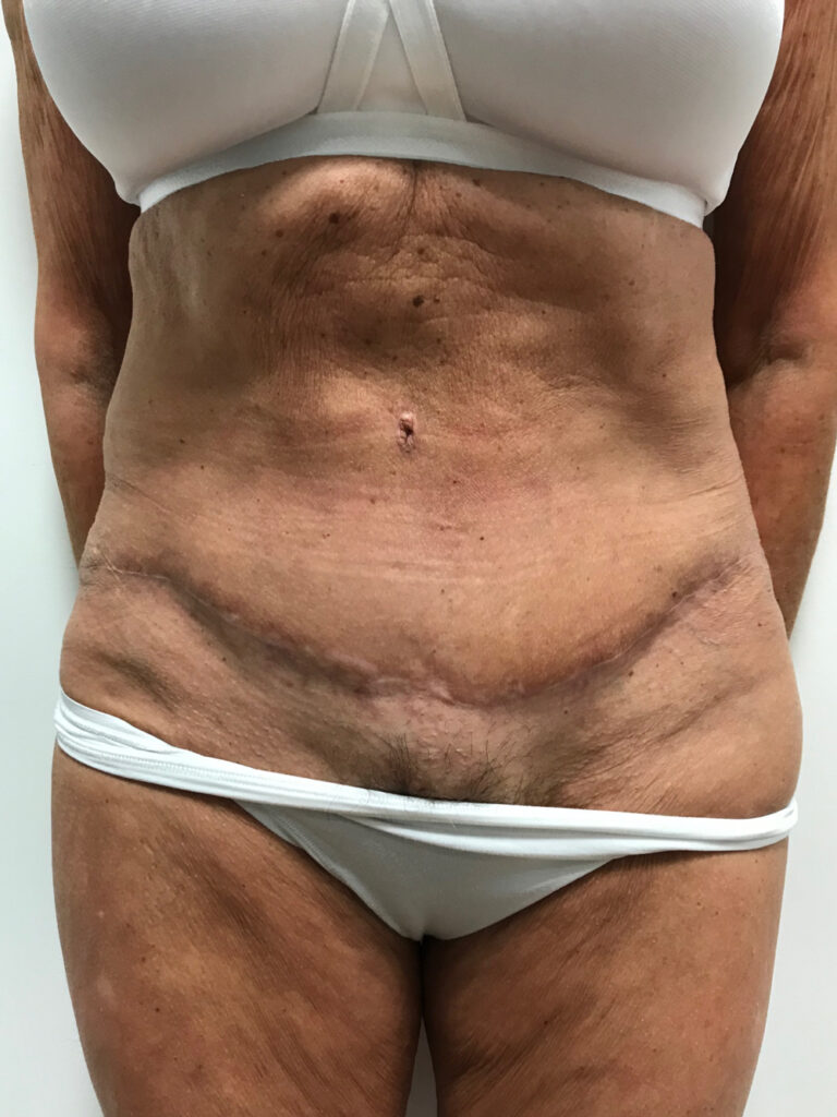 after photo abdominoplasty
