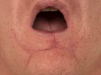 After photo following lower lip skin cancer excision and reconstruction