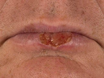 lower lip skin cancer