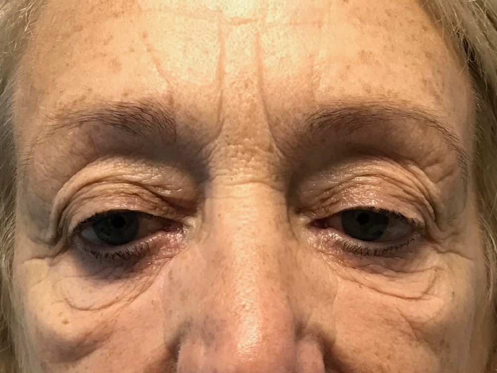 Before photo of a lower eyelid blepharoplasty