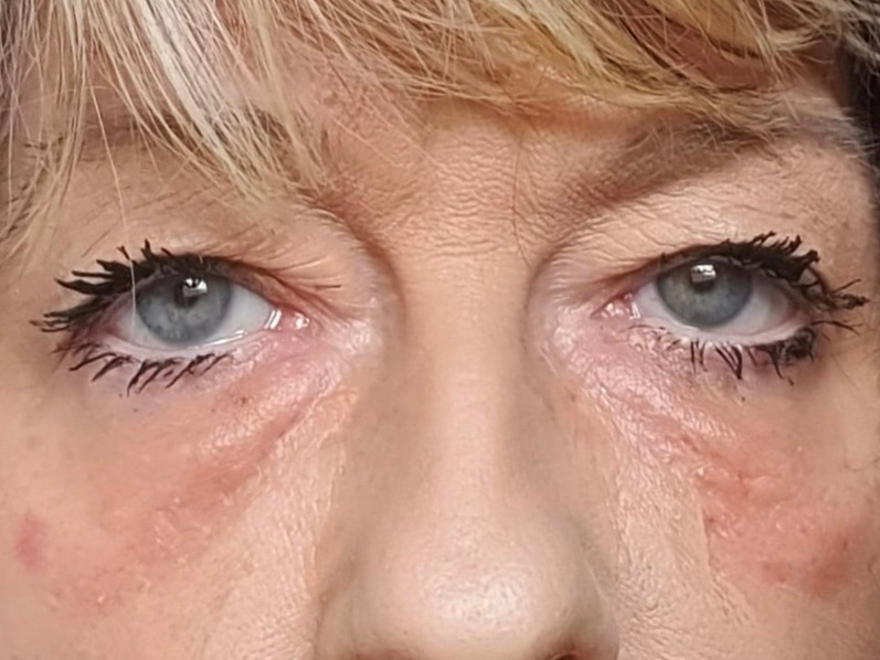 Xanthelasma after laser treatment
