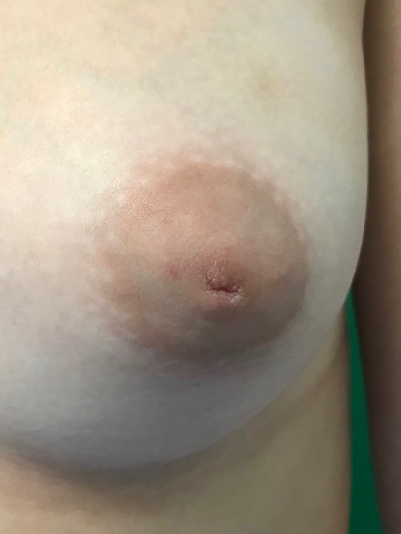 before photo nipple inversion correction