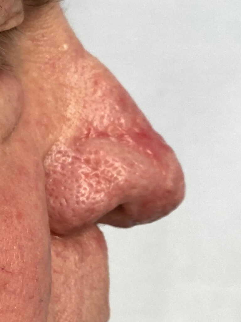 Rhinophyma after laser treatment