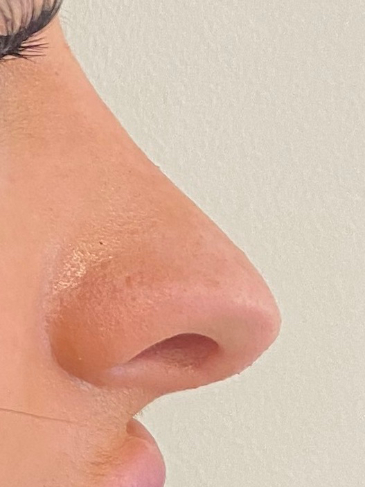 after photo rhinoplasty