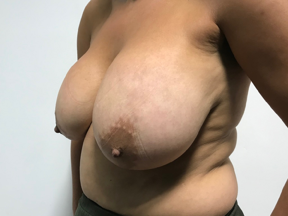 Before removal of implants and mastopexy