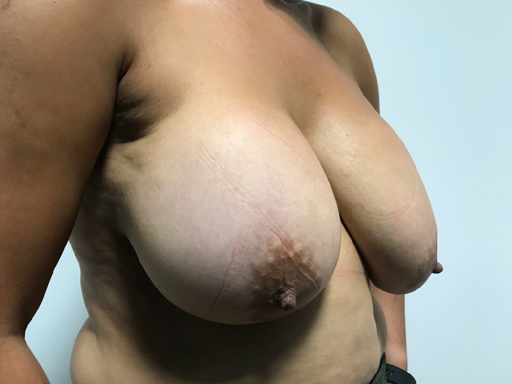 Before removal of implants & mastopexy