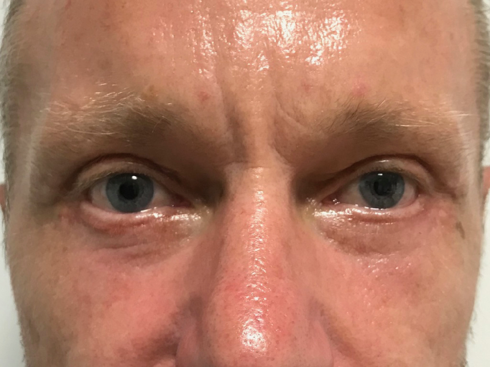 After photo upper and lower blepharoplasty
