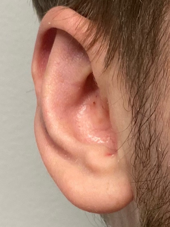 After prominent ear correction