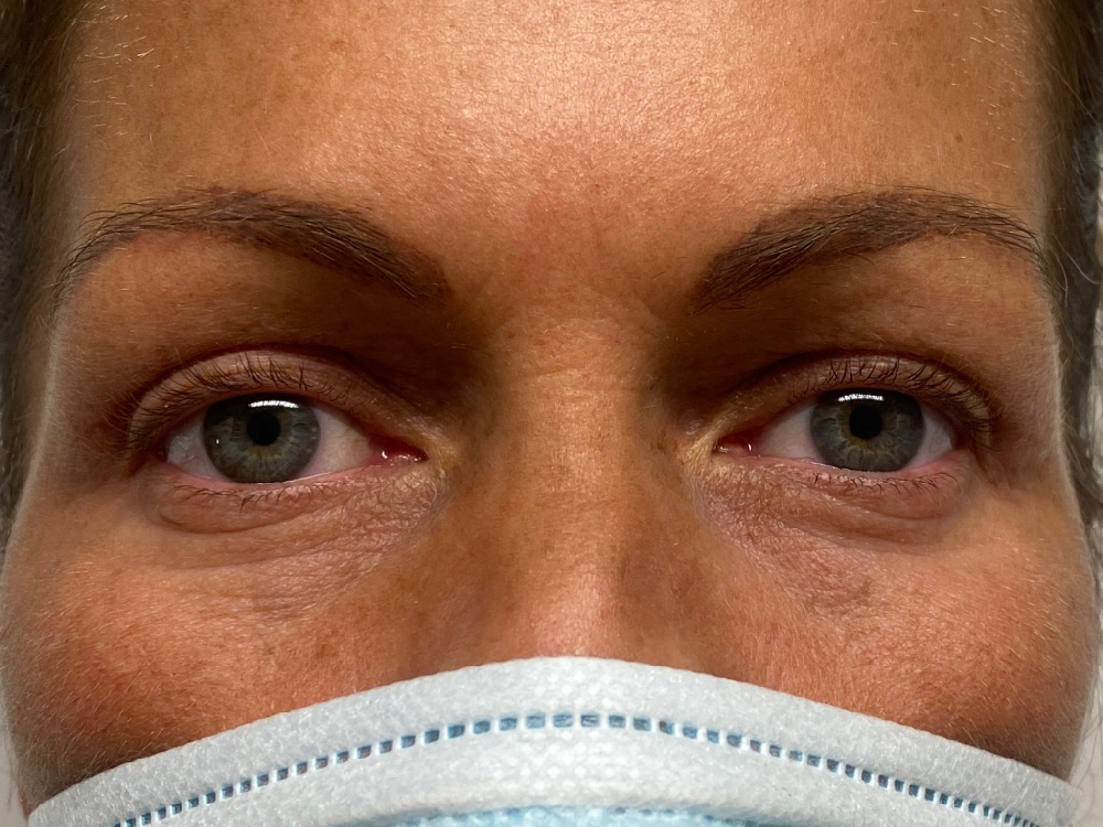 After upper blepharoplasty