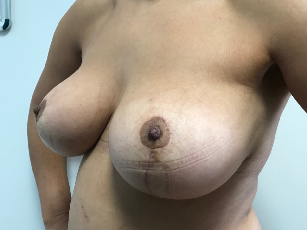After removal of implants & mastopexy