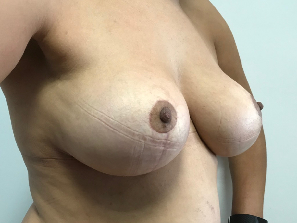 After removal of implants and mastopexy