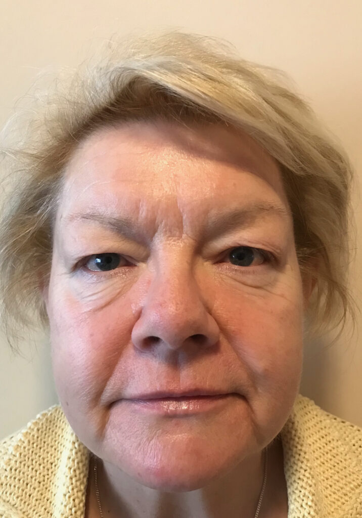 before photo upper blepharoplasty