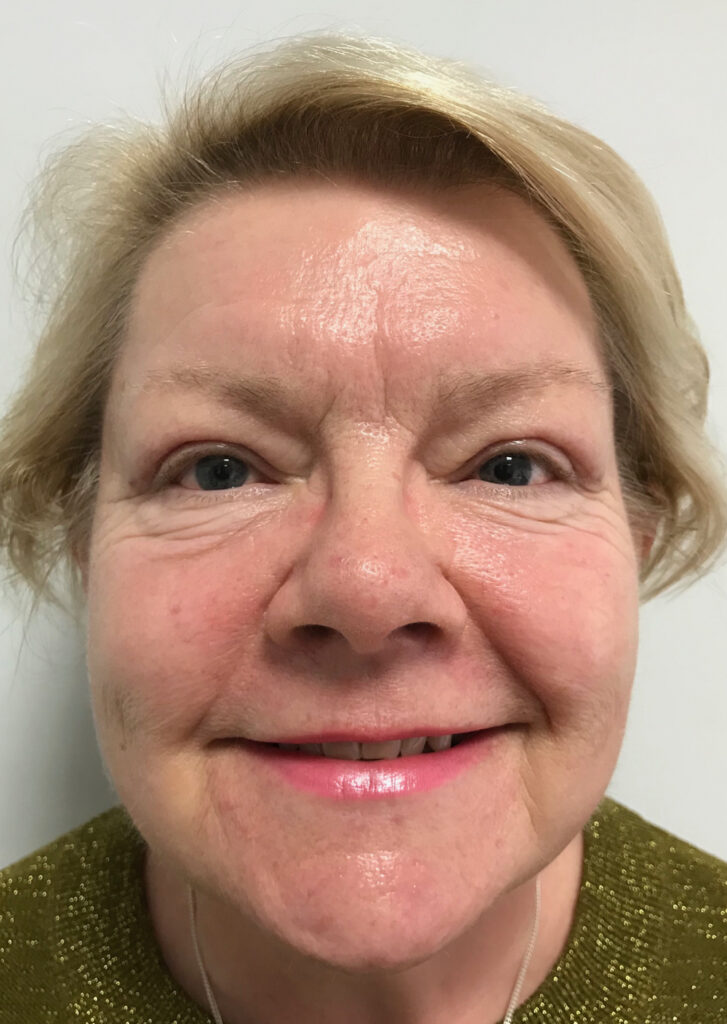 after photo upper blepharoplasty