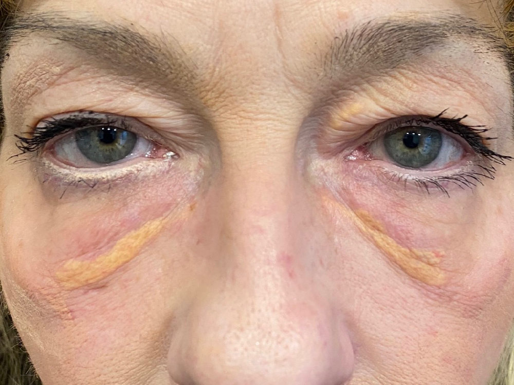 xanthelasma before laser treatment