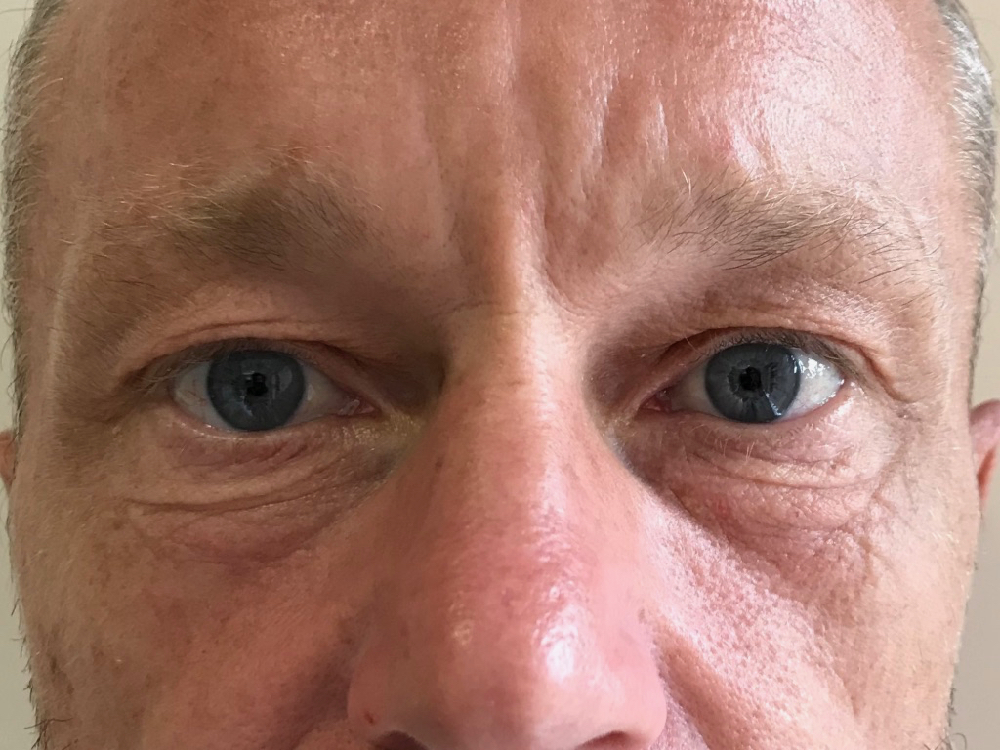 Before Upper and lower blepharoplasty