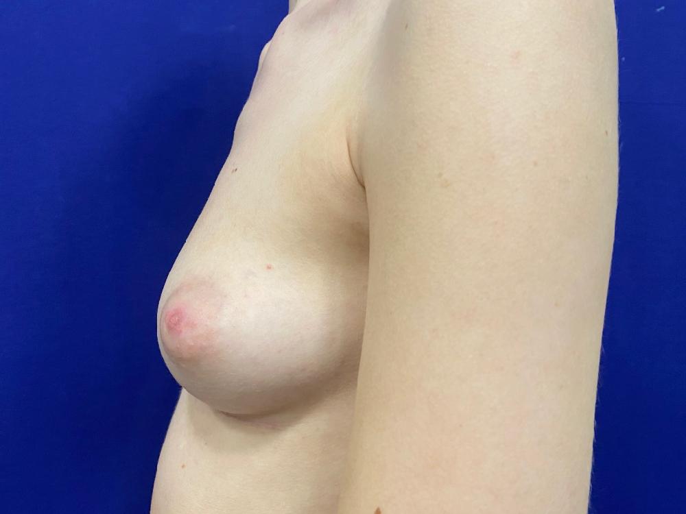 Before photo breast augmentation