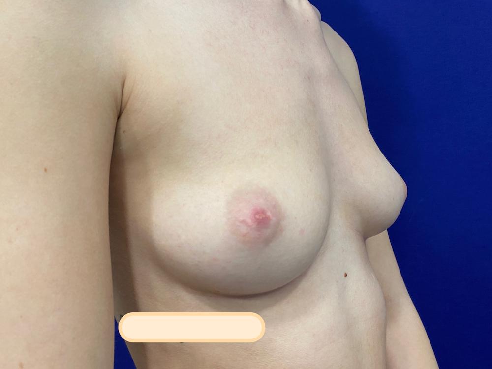 Preop breast augmentation