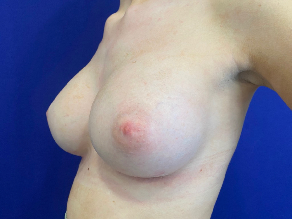 after photo breast augmentation