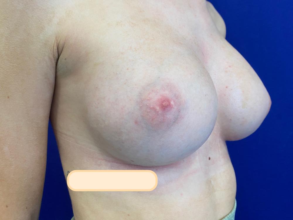 postop breast augmentation